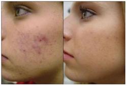 elimanción manchas-acné