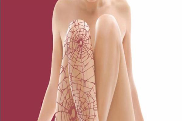 lesiones-vasculares