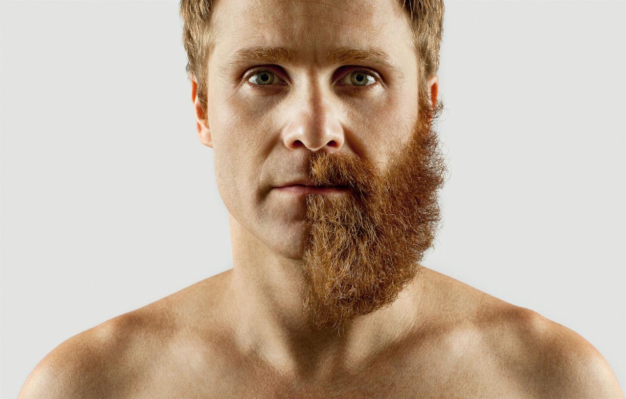depilacion-laser-barba-valencia