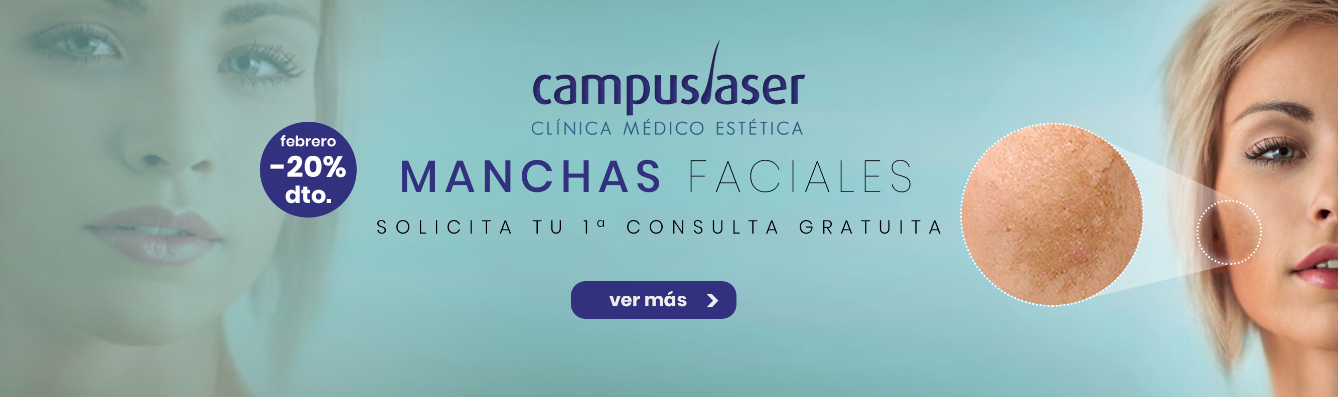 tratamiento de manchas faciales