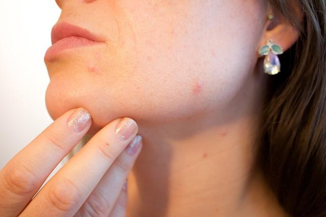 acne-eliminacion