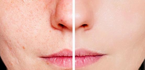 acne y cicatrices campuslaser