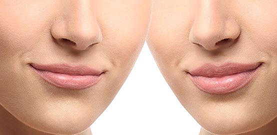 aumento labios CAMPUSLASER