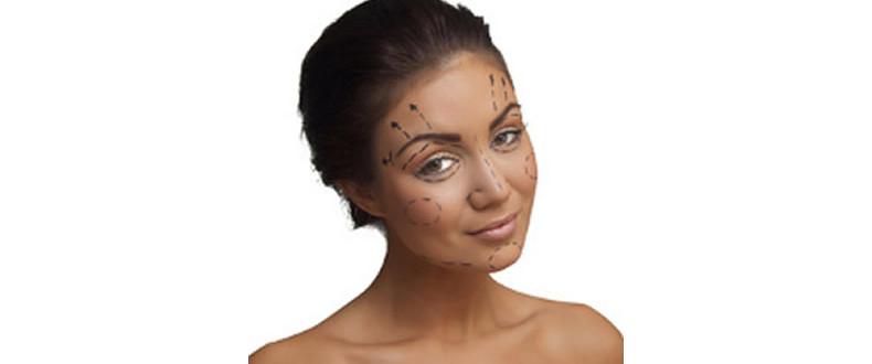 rellenos-arrugas-valencia